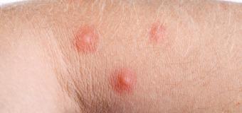 Objawy pokrzywki alergicznej i naturalne sposoby na atopowe zapalenie skóry